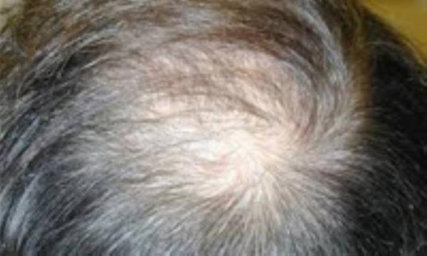 ریزش مو علت دارد!